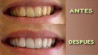Blanqueamiento dental: Informacion. Por que hacer.
