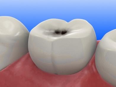 Caries dentales: Su formacion. Información.
