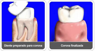 Coronas dentales: Tipos, causas.