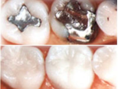 Reemplazo de amalgamas o arreglos dentales