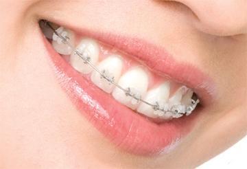 Ortodoncia estetica.