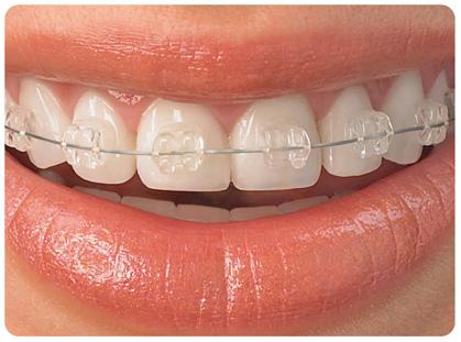 Tratamientos de ortodoncia