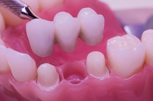 Protesis fijas: puentes dentales fijos.